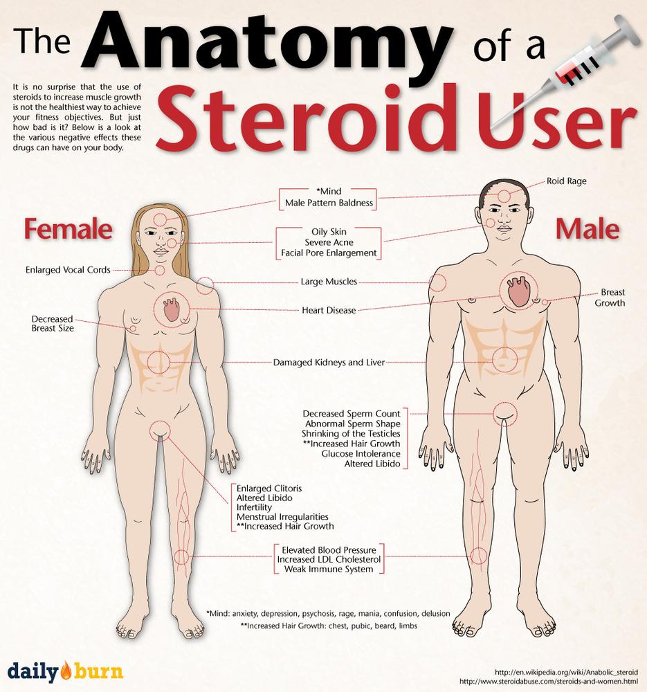 steroid responder definition